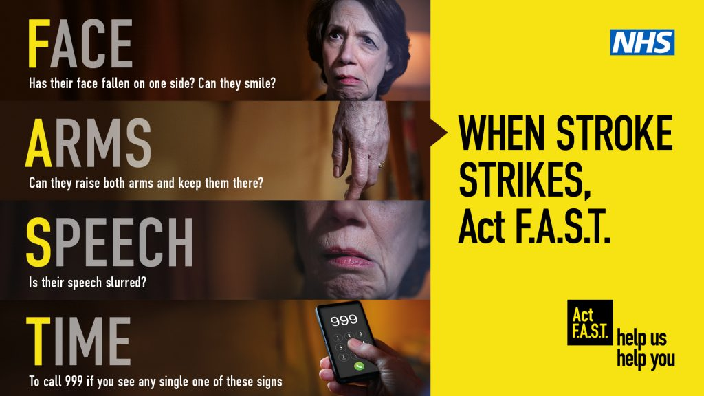 Act FAST Stroke image